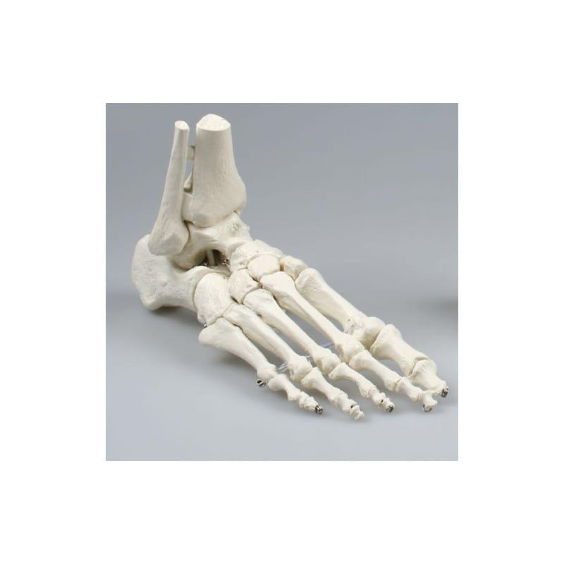 Model stopy z fragmentami kości podudzia