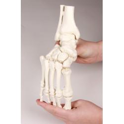 Elastyczna stopa z fragmentami kości podudzia