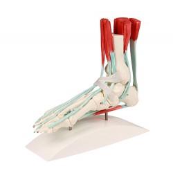 Szkielet stopy z aparatem...